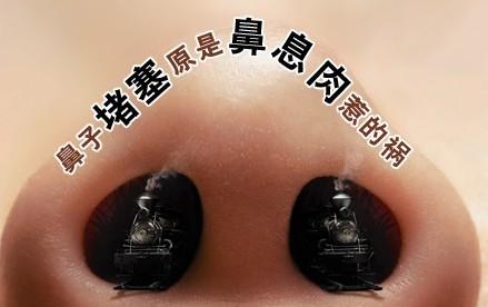 鼻息肉该怎么治疗?需要手术吗?
