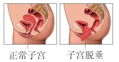 女性为什么会子宫脱垂_上海宏康医院妇科中心