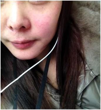 化妆品过敏的症状_