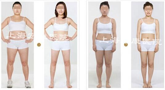 拔罐减肥通过对肥胖位置的辨证